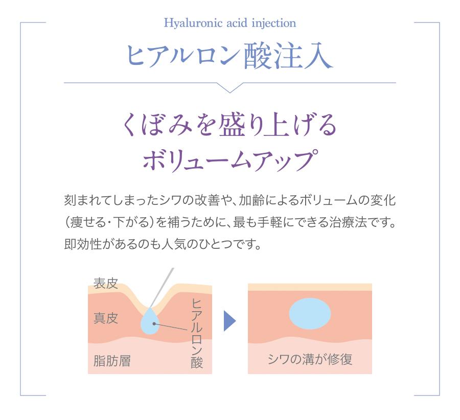 注入治療_lp_02