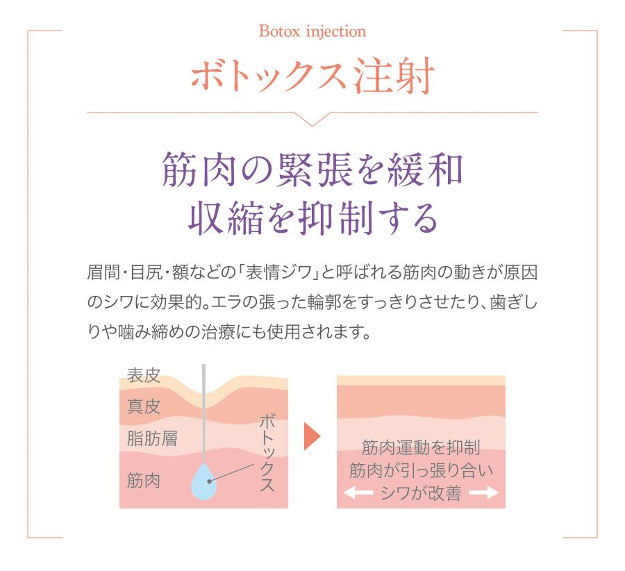 注入治療_lp_03