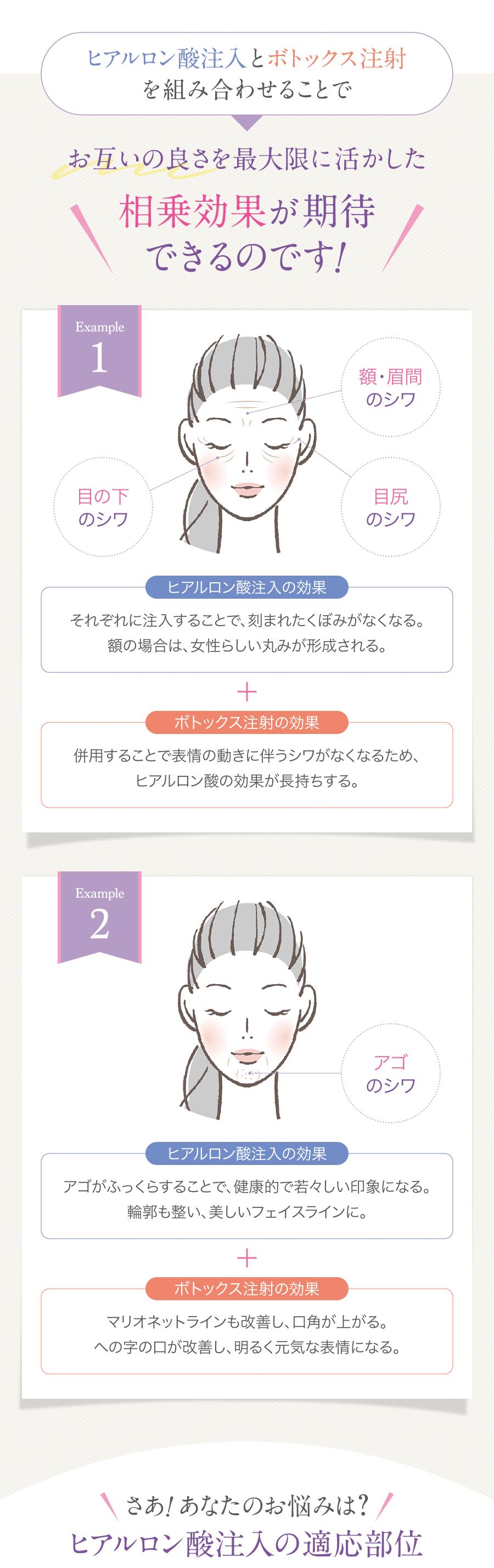 注入治療_lp_04