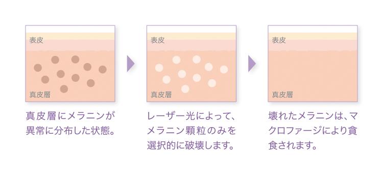 レーザートーニング肌の図