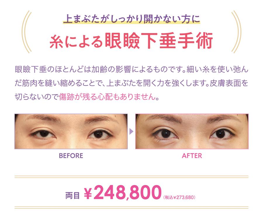 糸による眼瞼下垂手術