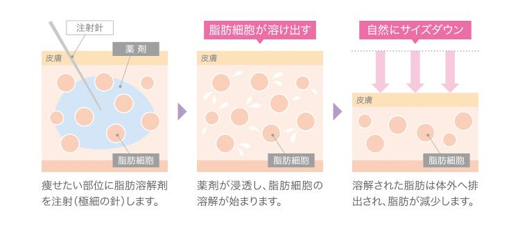 脂肪溶解注射の説明図