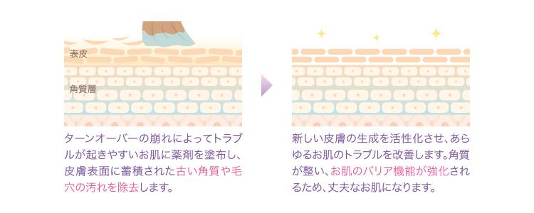 ケミカルピーリング_図